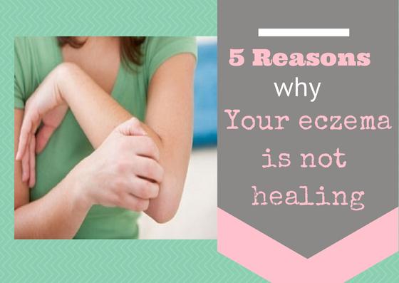 5 reasons why your eczema isn't healing