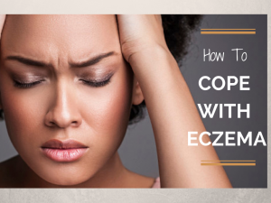 How to cope when you have eczema (PLUS, I got MARRIED!)