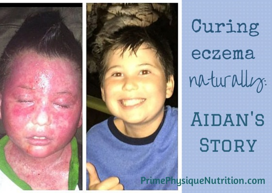 Curing Eczema Naturally: Aidan's Story