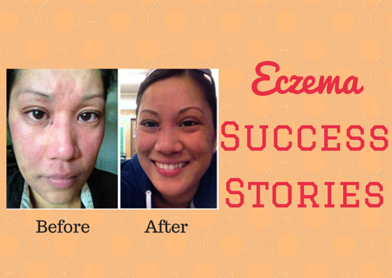 Laura and Cynthia's Eczema Success Story