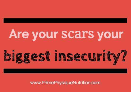 Are your scars your biggest insecurity?