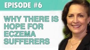 Why There is Hope for Eczema Sufferers (with the CEO of the National Eczema Association) – The Eczema Podcast (Season 1, Episode 6)