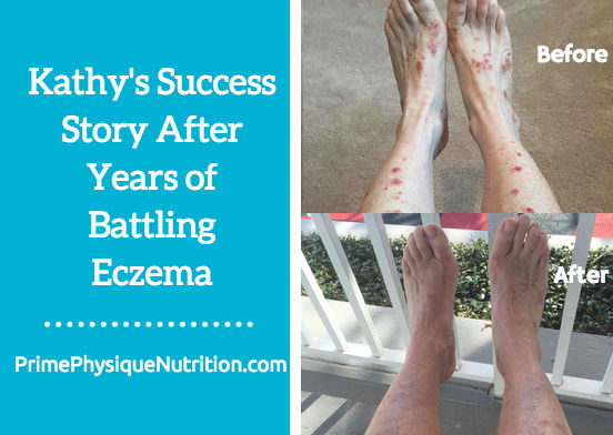 Kathy's Success Story After Years of Battling Eczema