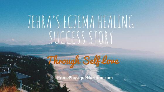 Zehra's Eczema Healing Success Story Through Self Love