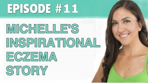 Michelle's Inspirational Eczema Story – The Eczema Podcast (Season 1, Episode 11)