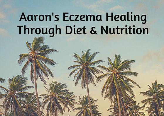 Aaron's Eczema Healing Journey Through Diet & Nutrition
