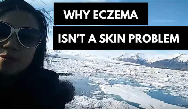 Why Your Eczema Isn't a Skin Problem (Learn The Iceberg Analogy)