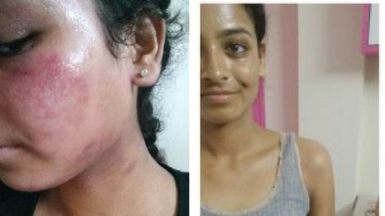 Navya's Eczema Healing Journey Through TSW