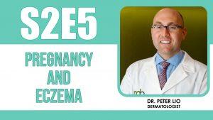 Eczema and dermatitis in pregnancy