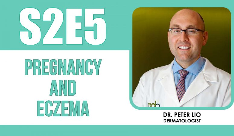 How To Treat Eczema Flare Ups During Pregnancy – The Eczema Podcast S2E5