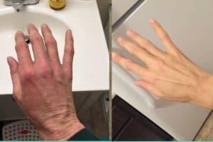 Eczema Healing Stories