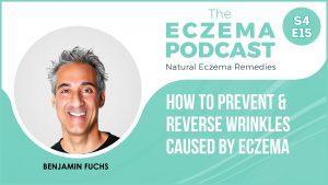 eczema wrinkles