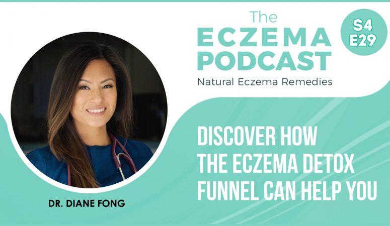 Do detox funnels and liver & gallbladder flushes help eczema? – S4E30