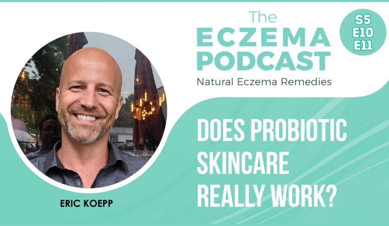 Does probiotic skincare for eczema actually work? – (S5E10 & 11)