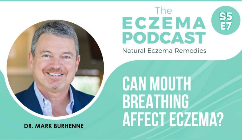 Can mouth breathing affect eczema? – The Eczema Podcast (S5E7)