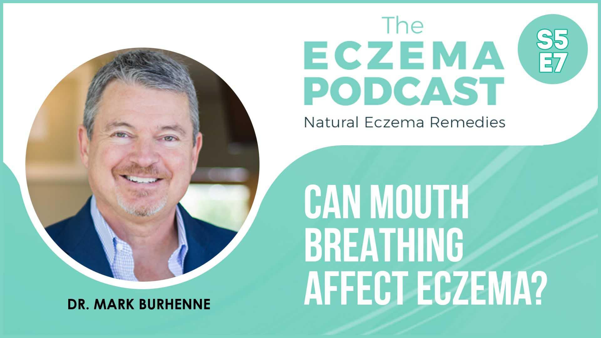 mouth breathing eczema dental dr. mark burhenne